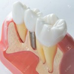 servicio-implante-dental