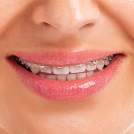 servicio-ortodoncia