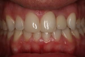 Implante Incisivo Lateral